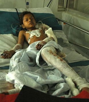 Boy injured in varanasi blasts 2006