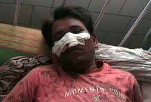 Dalit nose chopped off by uppercastes for riding motorcycle bhopal