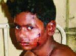 Dalit boy stabbed